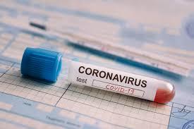 Porkurorja në Pejë infektohet me coronavirus