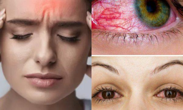 Lloji i ri i COVID-19: Këto janë tri simptomat që shfaqen në sytë tuaj